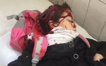 داعش تتبنى أنفجار كابل الأنتحاري 160 ضحية