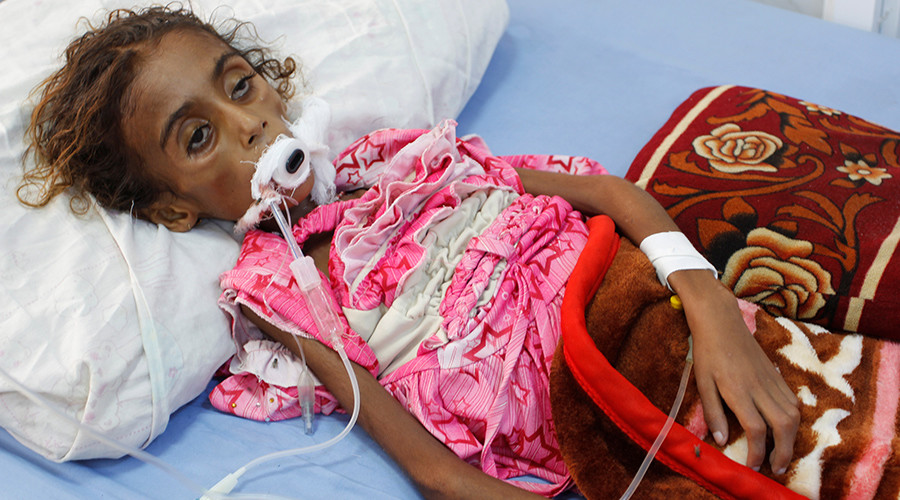 One Yemeni children infected by cholera every 35 seconds