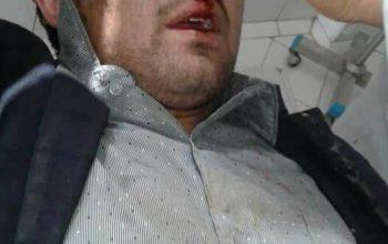 لتوکوب یک خبرنگار از سوی رییس جامعه مدنی تخار