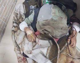 کشته و زخمی شدن 12 کودک در اثر انفجار ماین در فاریاب