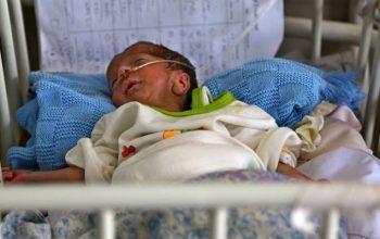 بیش از 20 کودک قربانی بیماری ناشناخته در بدخشان