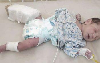 پانزده کشته و شانزده زخمی در حمله بر شفاخانه یکصدبستر دشت برچی