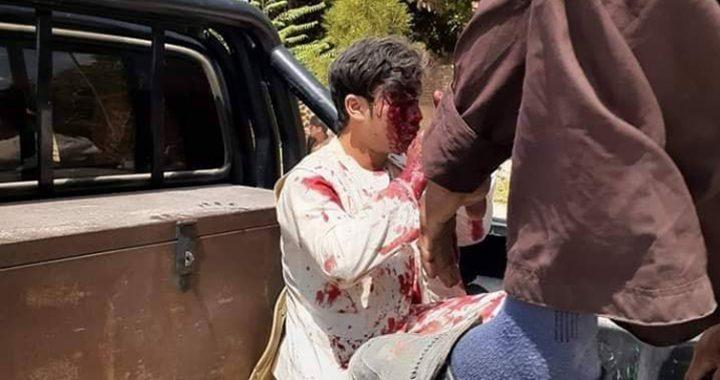 درگیری مهاجمین با نیروهای امنیتی در شهر ایبک