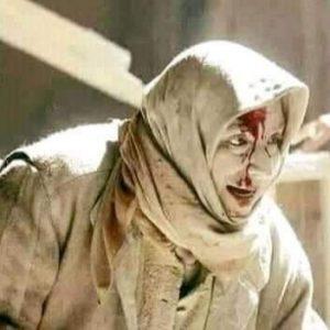 ادامه حملات وحشیانه رژیم صهیونیستی به غزه